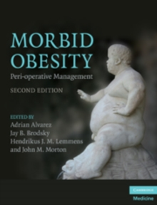 Morbid Obesity : Peri-operative Management, Hardback Book