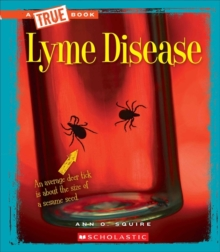 Lyme Disease (A True Book: Health), Paperback Book