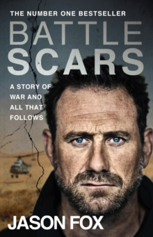 Battle Scars : A Story of War and All That Follows, Paperback / softback Book