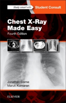 Chest X-Ray Made Easy, Paperback / softback Book
