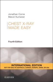 Chest X-Ray Made Easy, Paperback Book
