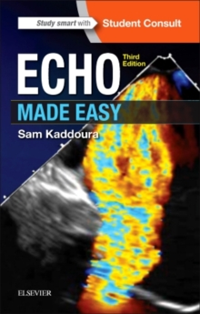 Echo Made Easy, Paperback Book