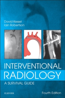 Interventional Radiology: A Survival Guide E-Book, EPUB eBook