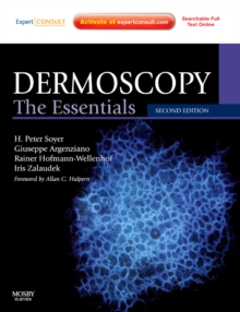 Dermoscopy : The Essentials: Expert Consult - Online and Print, Paperback Book