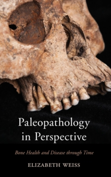 Paleopathology in Perspective : Bone Health and Disease Through Time, Hardback Book