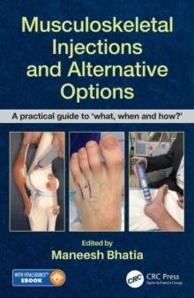 Musculoskeletal Injections and Alternative Options : A practical guide to 'what, when and how?', Mixed media product Book