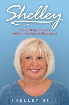 SHELLEY : The uplifting story of a battle to overcome disfigurement, Paperback / softback Book