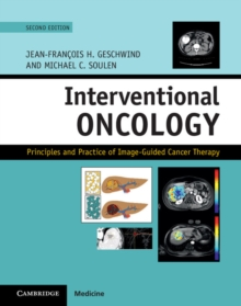 Interventional Oncology : Principles and Practice of Image-Guided Cancer Therapy, Hardback Book
