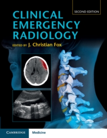 Clinical Emergency Radiology, Hardback Book