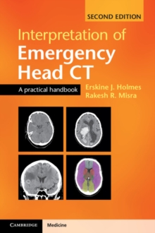 Interpretation of Emergency Head CT : A Practical Handbook, Paperback Book