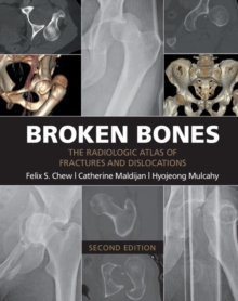 Broken Bones : The Radiologic Atlas of Fractures and Dislocations, Paperback Book