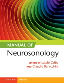 Manual of Neurosonology, Paperback Book