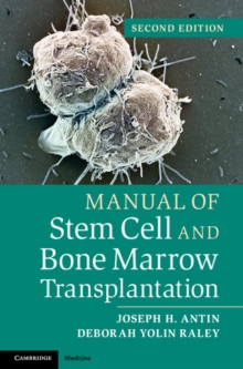 Manual of Stem Cell and Bone Marrow Transplantation, Paperback Book