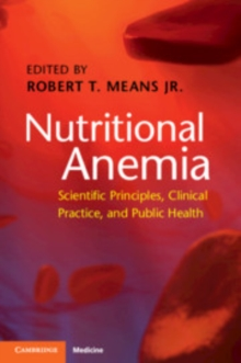 Nutritional Anemia : Scientific Principles, Clinical Practice, and Public Health, Paperback / softback Book