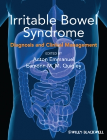 Irritable Bowel Syndrome : Diagnosis and Clinical Management, Paperback Book
