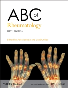 ABC of Rheumatology, Paperback / softback Book