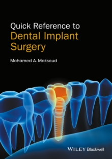 Quick Reference to Dental Implant Surgery, Paperback Book