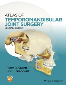 Atlas of Temporomandibular Joint Surgery, Hardback Book