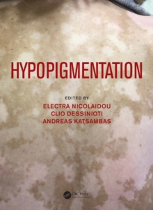 Hypopigmentation, Hardback Book