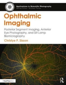 Ophthalmic Imaging : Posterior Segment Imaging, Anterior Eye Photography, and Slit Lamp Biomicrography, Paperback Book