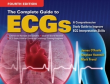The Complete Guide to ECGs, Paperback Book
