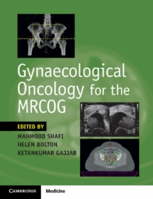 Gynaecological Oncology for the MRCOG, Paperback Book