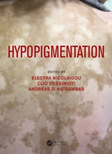 Hypopigmentation, PDF eBook
