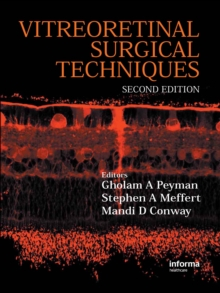 Vitreoretinal Surgical Techniques, Second Edition, EPUB eBook