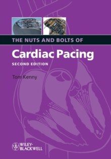 The Nuts and Bolts of Cardiac Pacing 2e, Paperback / softback Book