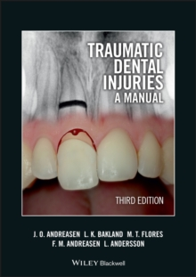 Traumatic Dental Injuries : A Manual, Paperback / softback Book