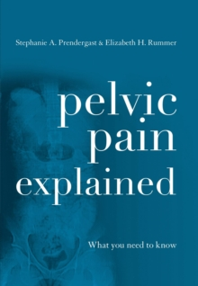 Pelvic Pain Explained : What You Need to Know, EPUB eBook