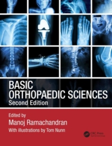 Basic Orthopaedic Sciences, Second Edition, Mixed media product Book