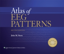 Atlas of EEG Patterns, Hardback Book