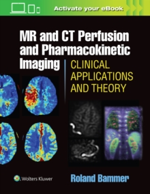 MR and CT Perfusion and Pharmacokinetic Imaging: Clinical Applications and Theoretical Principles, Hardback Book
