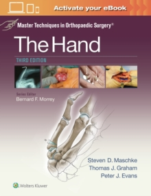 Master Techniques in Orthopaedic Surgery: The Hand, Hardback Book