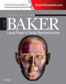 Local Flaps in Facial Reconstruction, Hardback Book