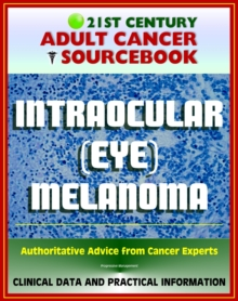 21st Century Adult Cancer Sourcebook: Intraocular (Eye) Melanoma - Clinical Data for Patients, Families, and Physicians, EPUB eBook