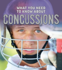What You Need to Know About Concussions, Hardback Book