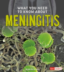 What You Need to Know About Meningitis, Hardback Book