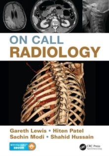 On Call Radiology, Mixed media product Book