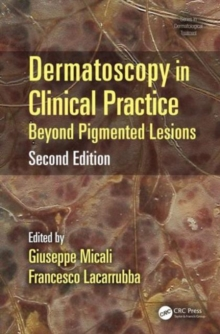 Dermatoscopy in Clinical Practice, Second Edition : Beyond Pigmented Lesions, Hardback Book