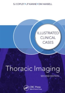 Thoracic Imaging : Illustrated Clinical Cases, Second Edition, Paperback / softback Book