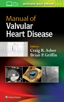 Manual of Valvular Heart Disease, Paperback Book