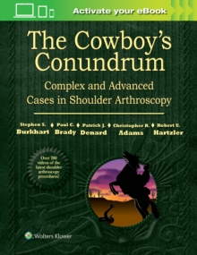The Cowboy's Conundrum: Complex and Advanced Cases in Shoulder Arthroscopy, Hardback Book