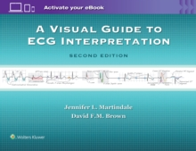 A Visual Guide to ECG Interpretation, Paperback Book