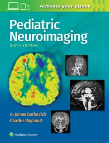 Pediatric Neuroimaging, Hardback Book