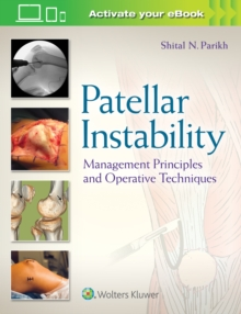 Patellar Instability : Management Principles and Operative Techniques, Hardback Book