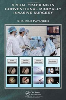 Visual Tracking in Conventional Minimally Invasive Surgery, Hardback Book