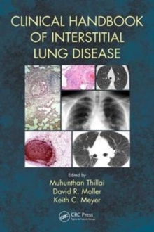 Clinical Handbook of Interstitial Lung Disease, Paperback Book