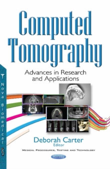 Computed Tomography : Advances in Research & Applications, Paperback Book